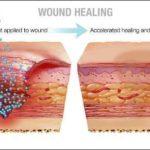 Доклиническое открытие запускает заживление ран, регенерацию кожи.